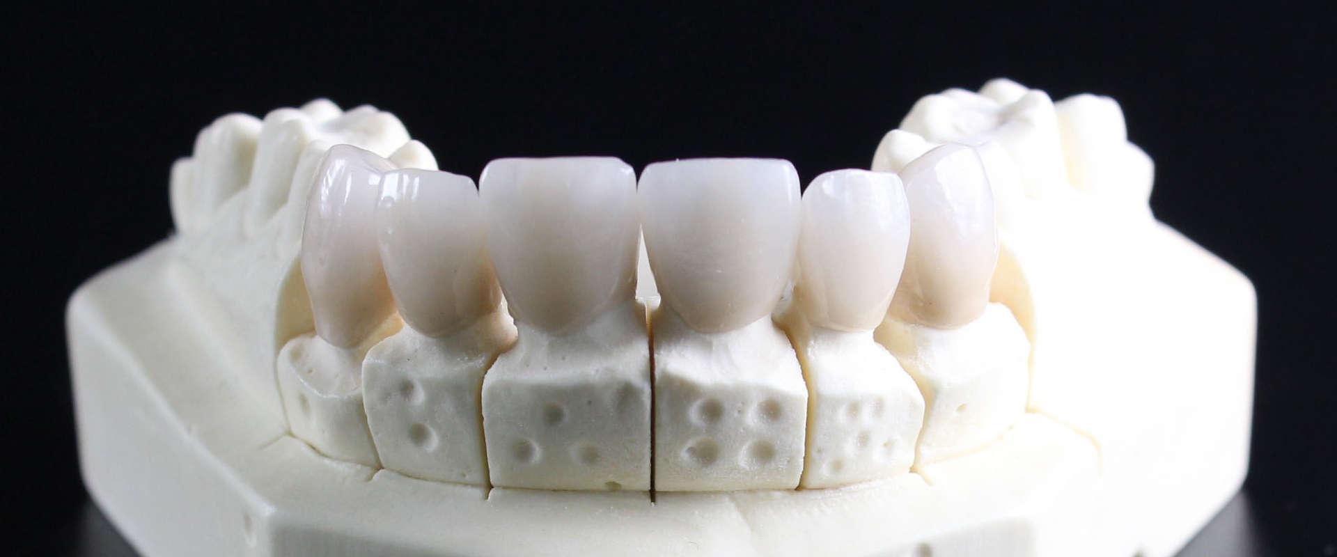 Prix pour les implants dentaires et prothèses